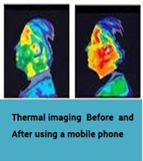 mobile phone use before after